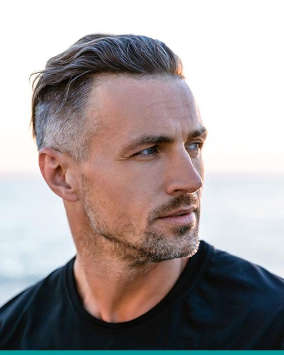 Finalem hair transplant man1